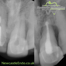 Removal of old root filling. Sealing endo of root with MTA cement and new root canal