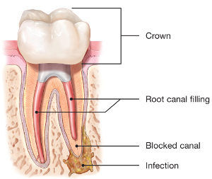 repeat root canal treatment re-treatment in newcastle