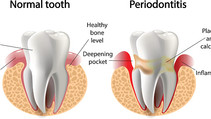 Gum Disease- What is it and how to prevent it