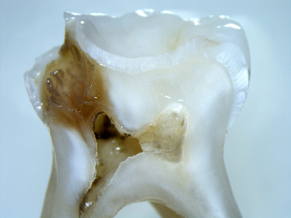 dental decay invading the pulp