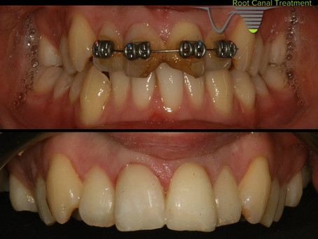 Rapid action can save a tooth which has been knocked out