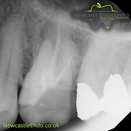 Old root filling in upper molar tooth