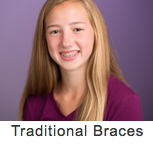 Traditional Braces 3.png