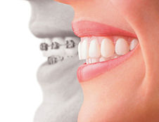 Invisalign treatment from orthodontic dentist in Singapore