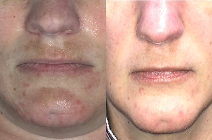 acne_before&after.png