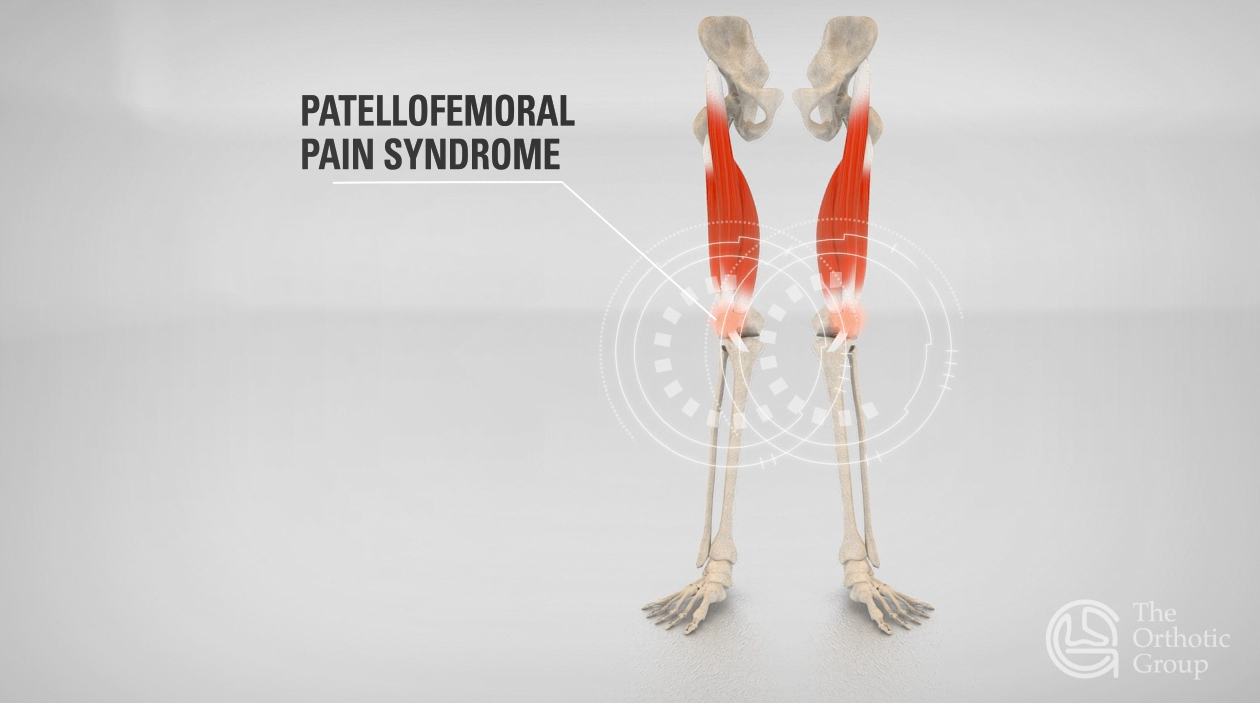 patellofemoral-pain-syndrome-foot-pain-f