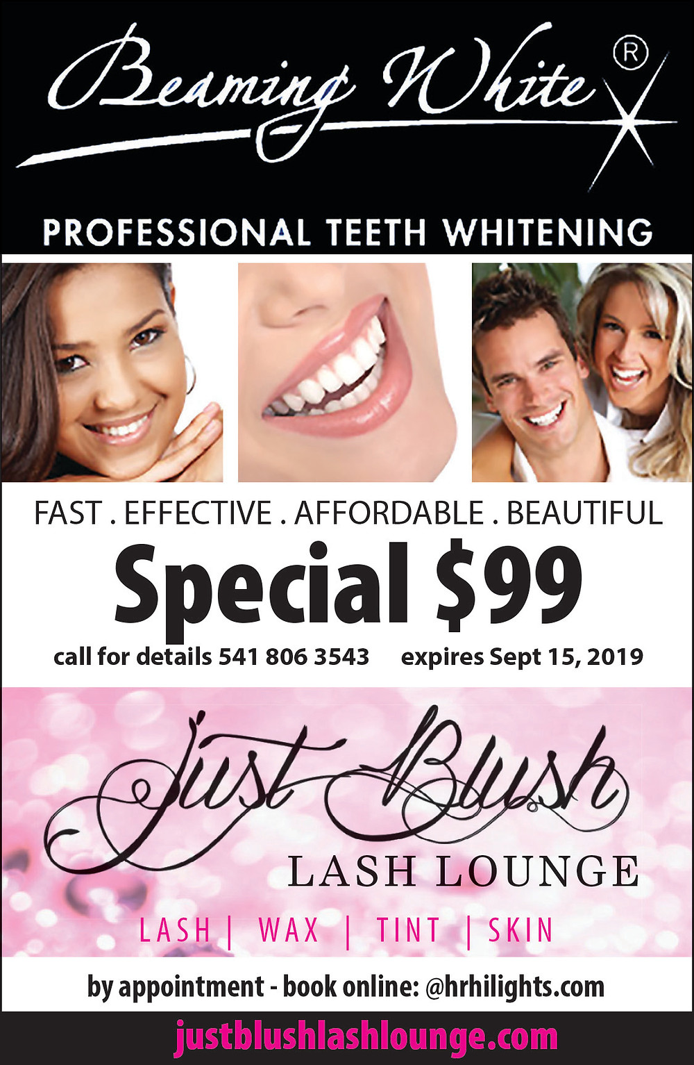 "Professional Teeth Whitening with ""Beaming White"""