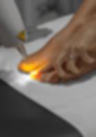 Pure Skin medical neglsopp laser.png