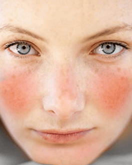 Rosacea PureSkin Medical.png