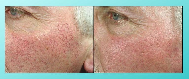 VITALAGE, 激光去微血管, Laser Vascular Removal
