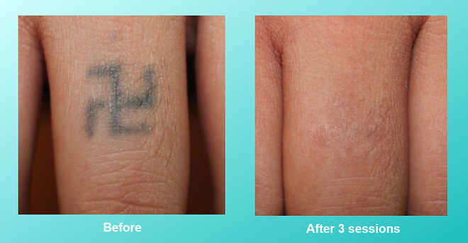 VITALAGE, 紋身, Tattoo Removal