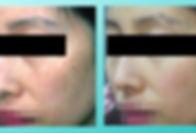 VITALAGE, 雀斑, PicoPigment Freckle