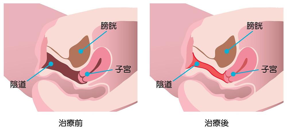 陰道於激光療程後得到改善。
