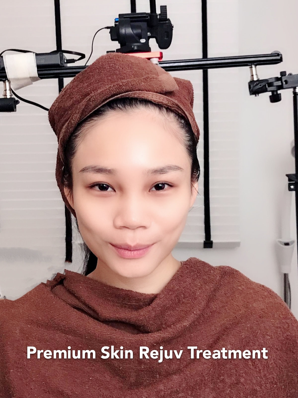 Premium Skin Rejuv Treatment