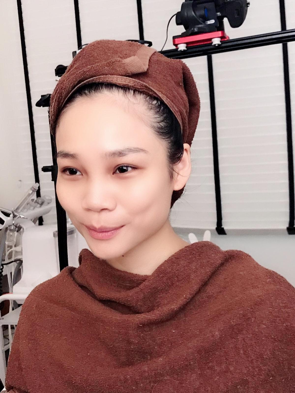 Classic Skin Rejuv Treatment