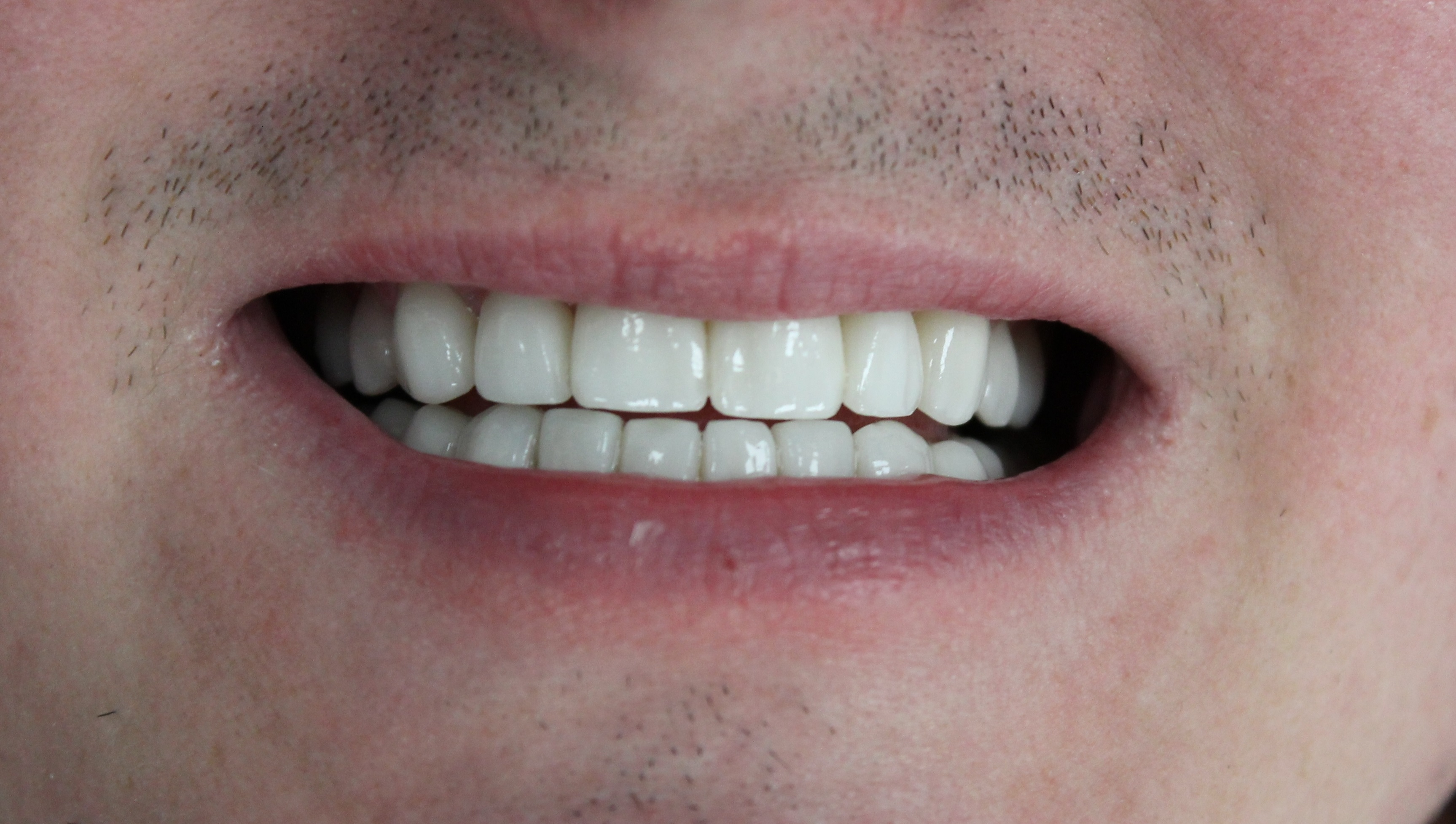 Smile Makeup with 10 upper and 10 lower veneers