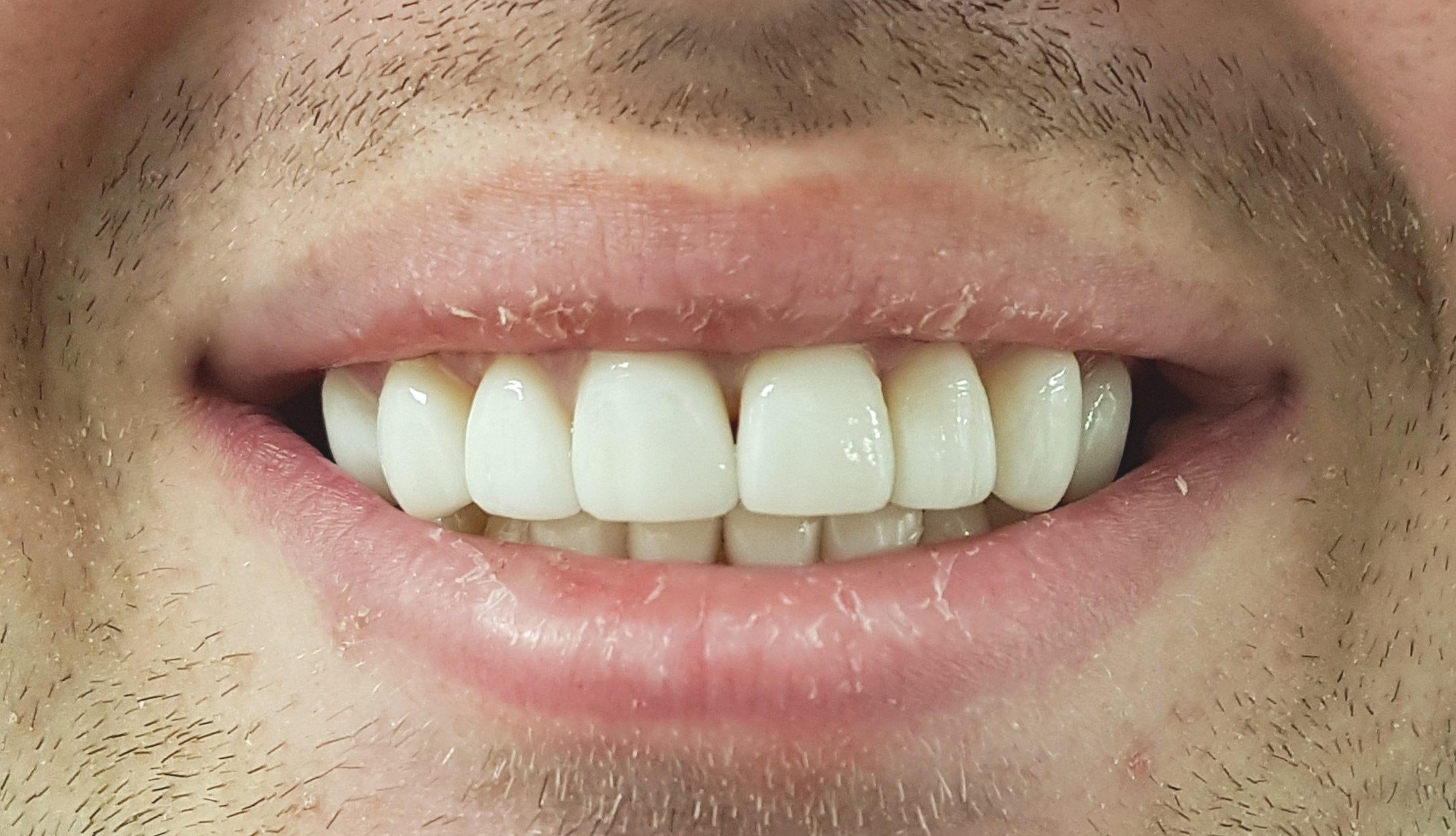 Gaps closed and whiter veneers