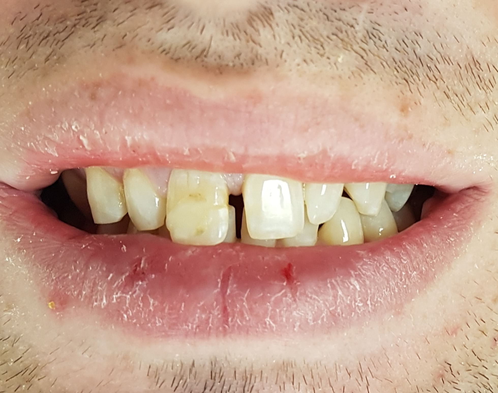 Gaps and yellow teeth