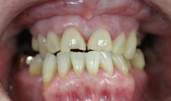 Worn teeth