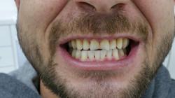 Worn Upper Teeth