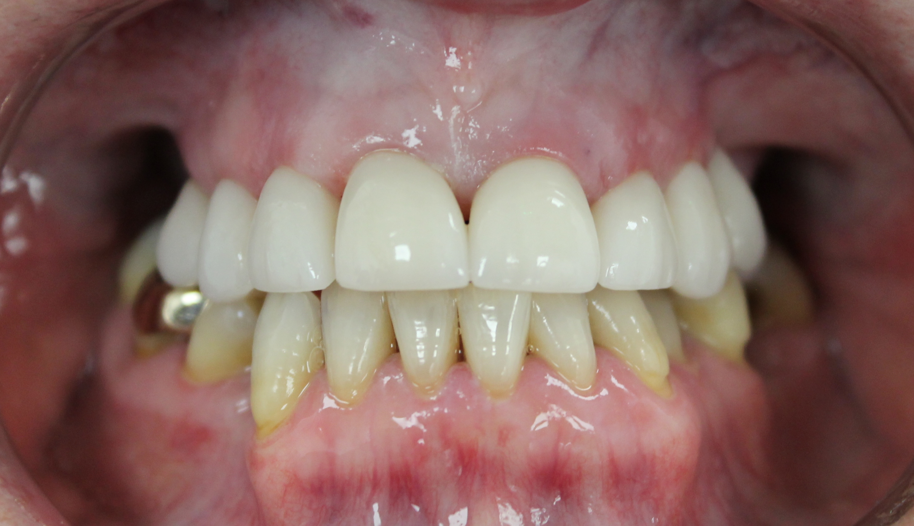 After smile makeover  with crowns that also corrected bite relationship