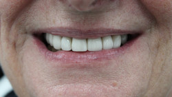 Smile makeover with new Emax crowns