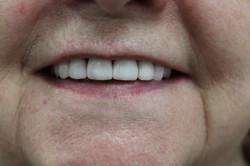 After Smile Makeover Veneers