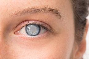 cataract.jpeg