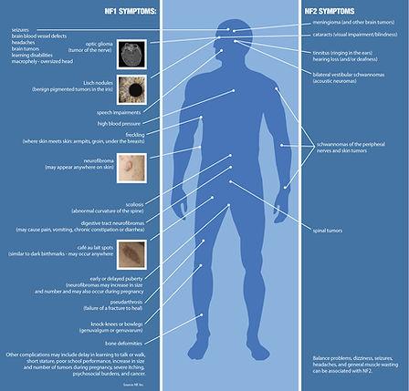 NF1-NF2-Symptoms.jpg