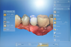 dental crowns in a day