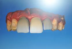 cosmetic dentist dental veneers