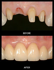 dental bridge installation