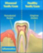 peridontal treatment