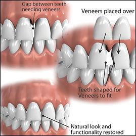 veneers cosmetic dentist
