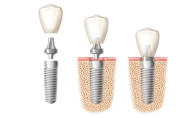 dental implants walnutport, pa