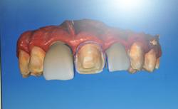 dental veneers dentist