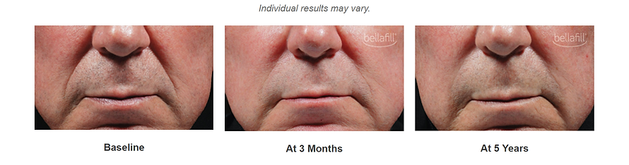 bellafill to treat smile lines available at Doctor K MediSpa near Baltmore, MD
