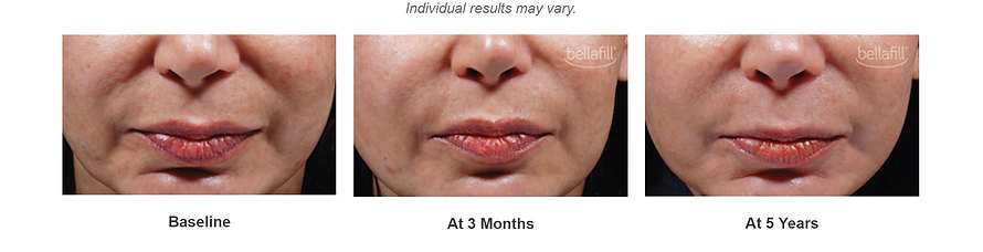 bellafill to treat wrinkles available at Doctor K MediSpa near Baltmore, MD