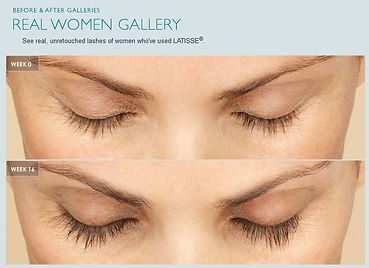 Latisse by Allergan, eyelash treatment