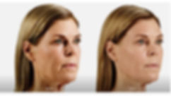 Juvederm Before and After Pictures in Baltimore, MD