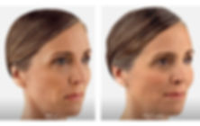 Juvederm Before and After Pictures in Columbia, MD