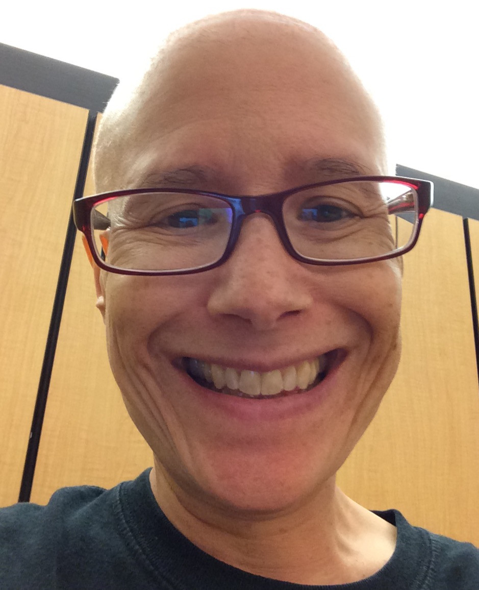 Ang with no hair as a result of chemotherapy 2014