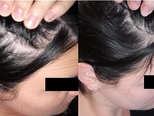 Female Hair Loss: Causes and Treatments