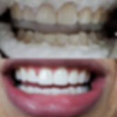 superb teeth whitening results
