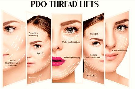 PDO Non Surgical Facelift Thread Lifts