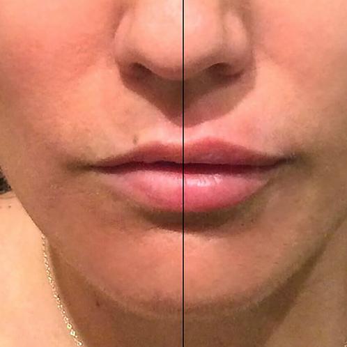 Volbella Lip Plumping