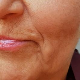 Fibroblast upper lip