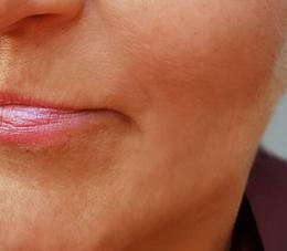 Post Fibroblast upper lip