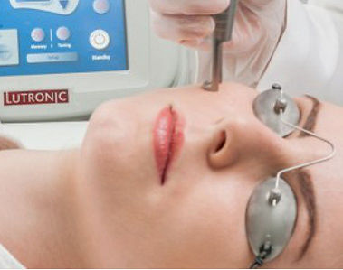 Spectra Laser Treatment
