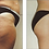 Thumbnail: Endermology Cellulite Removing Special - 4 Treatments